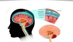 The quizzes about Cerebrospinal Fluid